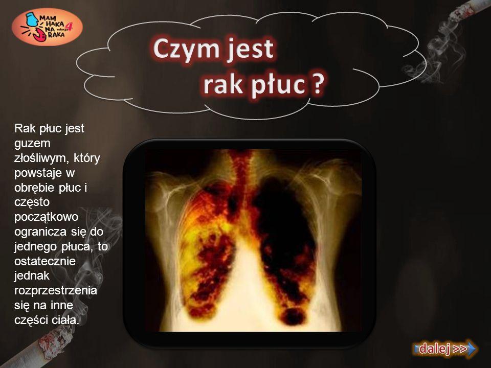Czym jest rak płuc dalej >>
