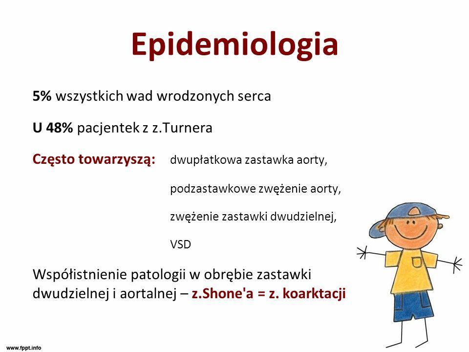 Epidemiologia 5% wszystkich wad wrodzonych serca