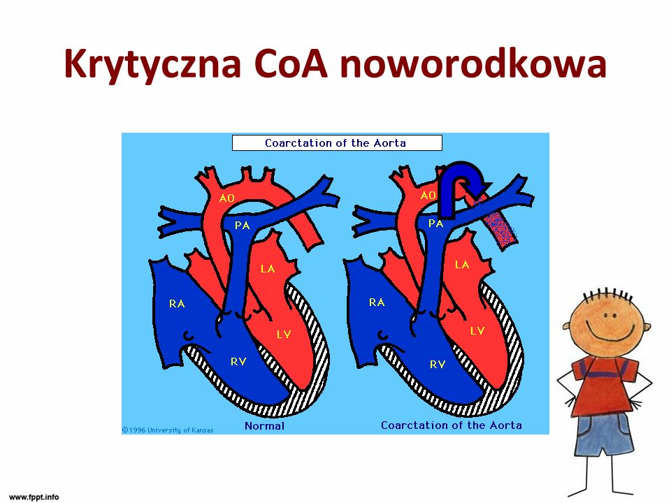 Krytyczna CoA noworodkowa