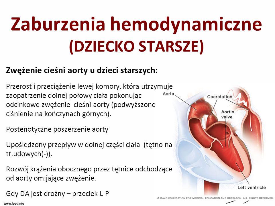 Zaburzenia hemodynamiczne (DZIECKO STARSZE)