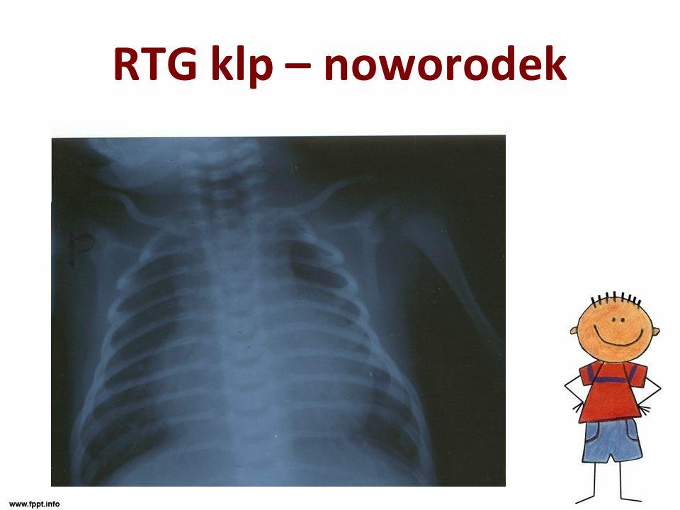 RTG klp – noworodek