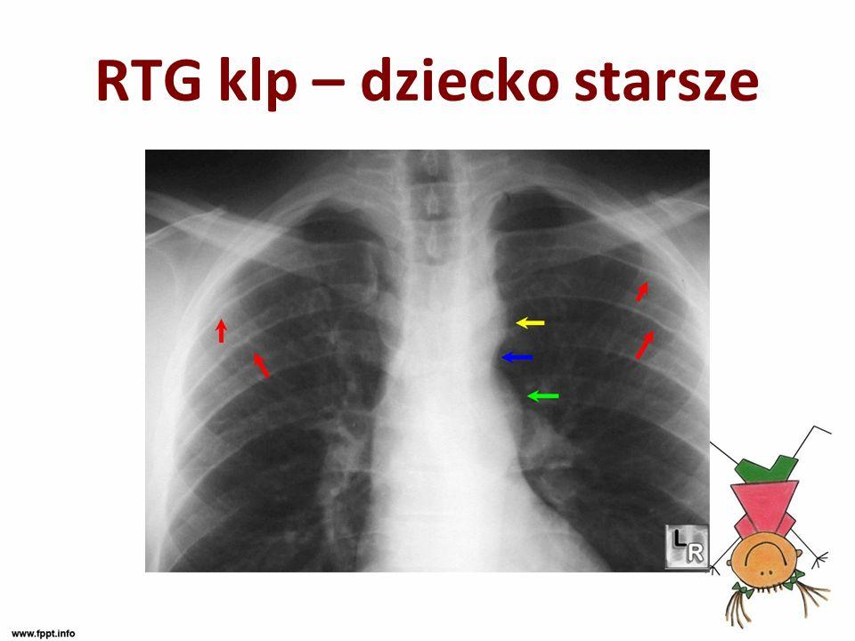 RTG klp – dziecko starsze
