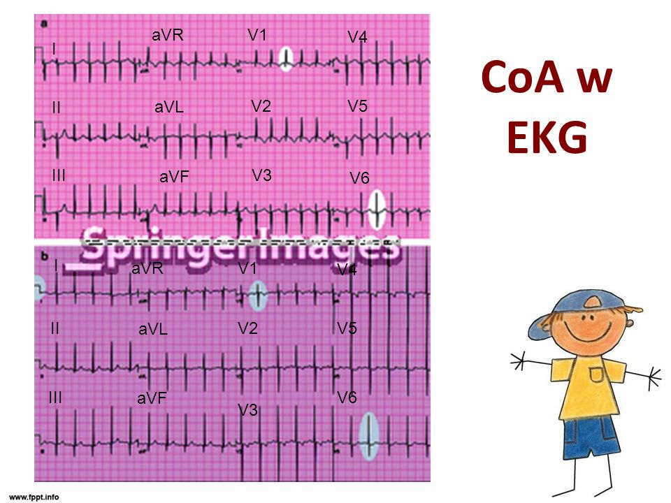 CoA w EKG aVR V1 V4 I II aVL V2 V5 III aVF V3 V6 I aVR V1 V4 II aVL V2