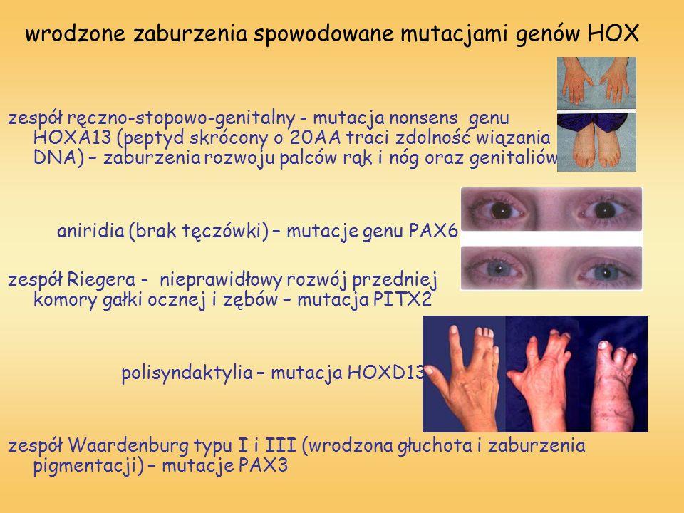 wrodzone zaburzenia spowodowane mutacjami genów HOX