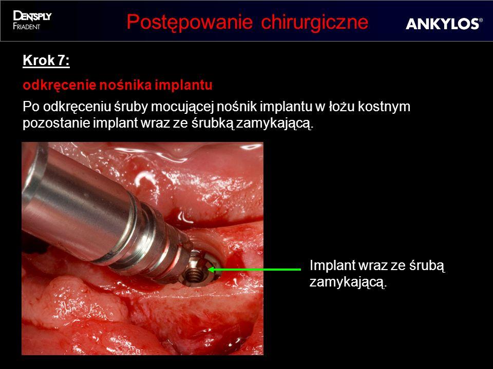 Postępowanie chirurgiczne