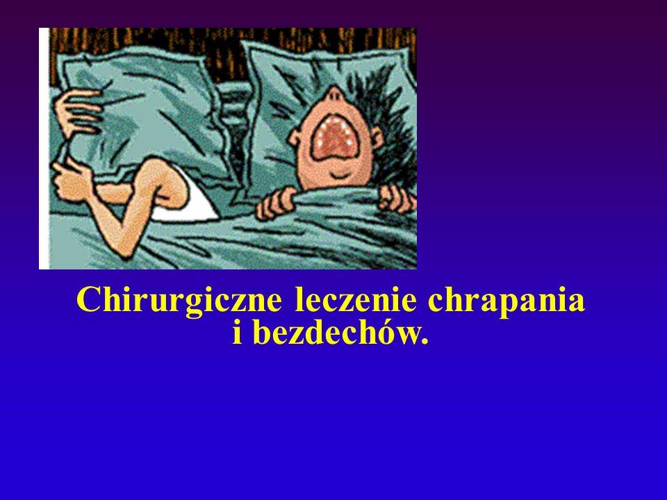 Chirurgiczne leczenie chrapania