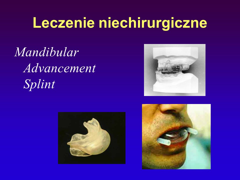 Leczenie niechirurgiczne
