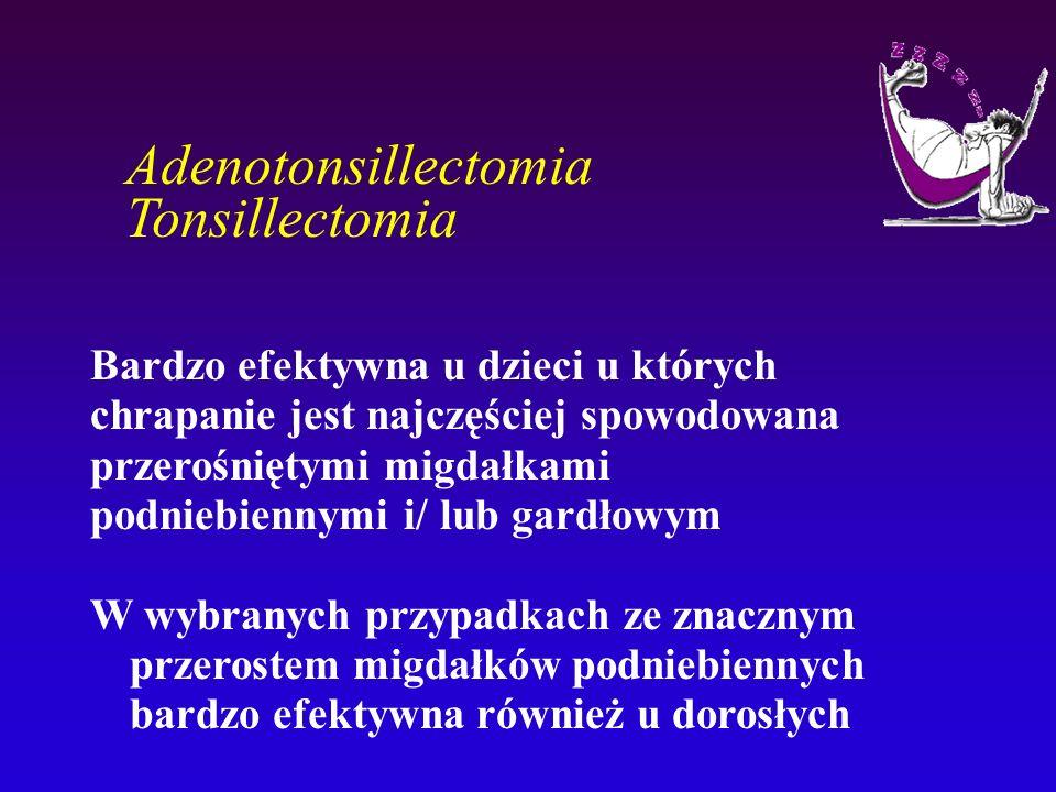 Adenotonsillectomia Tonsillectomia Bardzo efektywna u dzieci u których