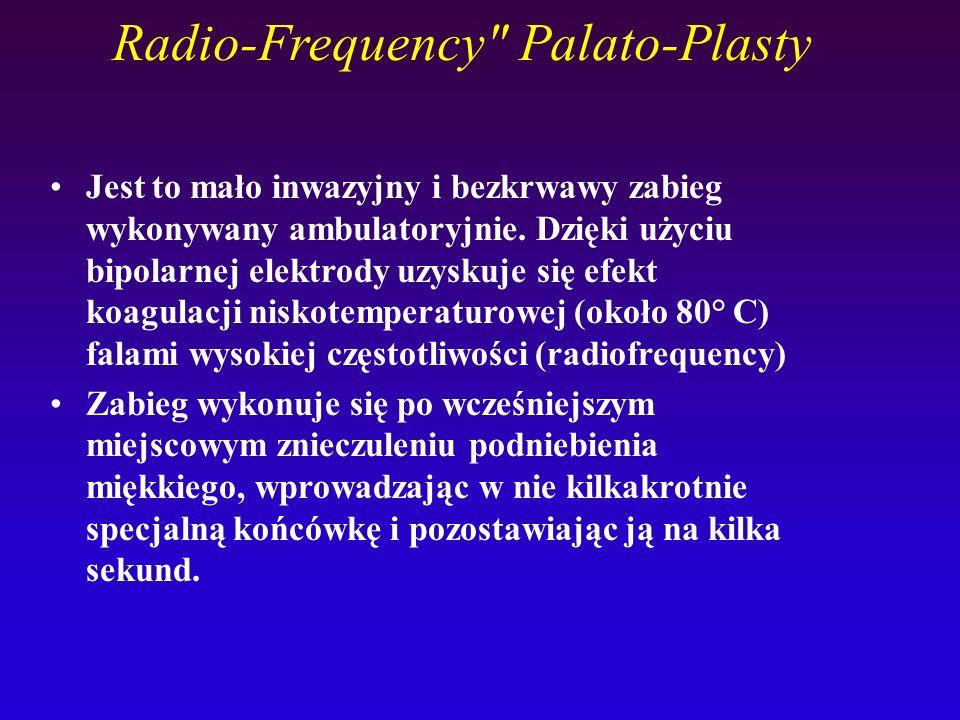 Radio-Frequency Palato-Plasty