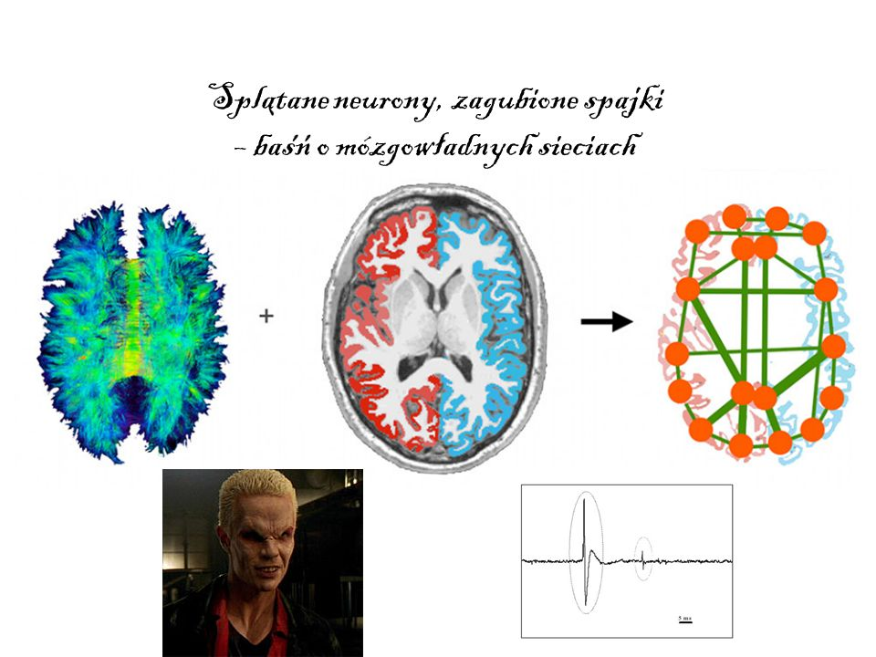 Splatane neurony, zagubione spajki – basn o mózgowladnych sieciach
