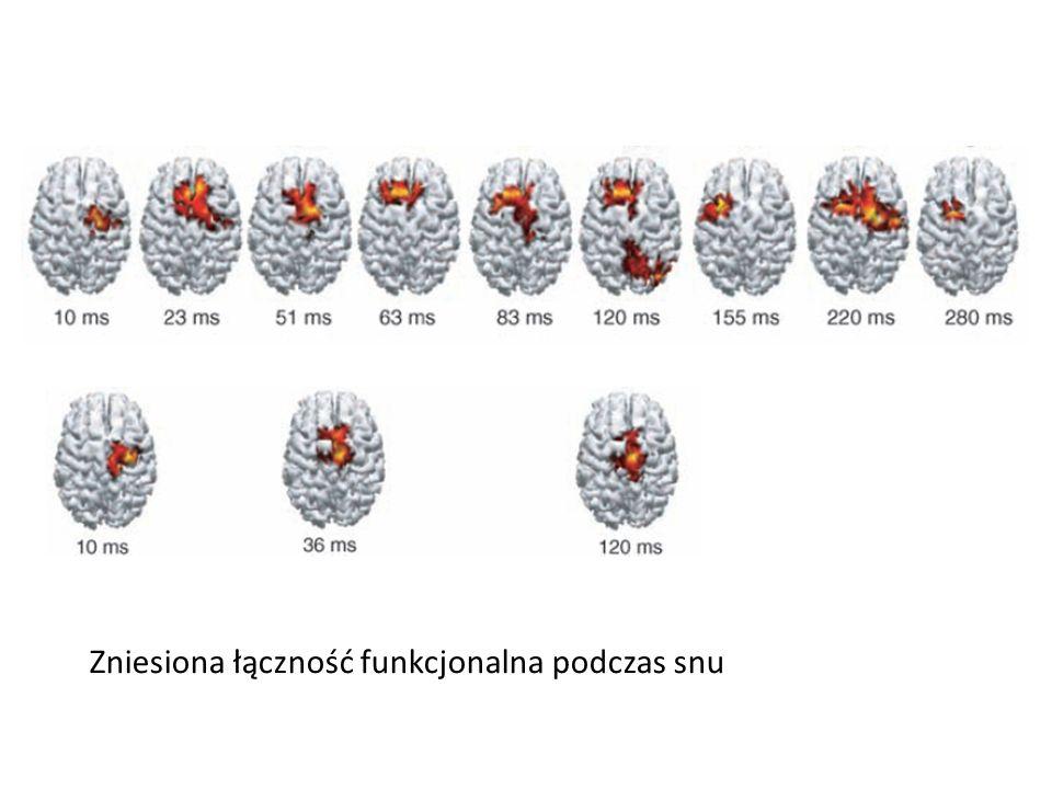Zniesiona łączność funkcjonalna podczas snu