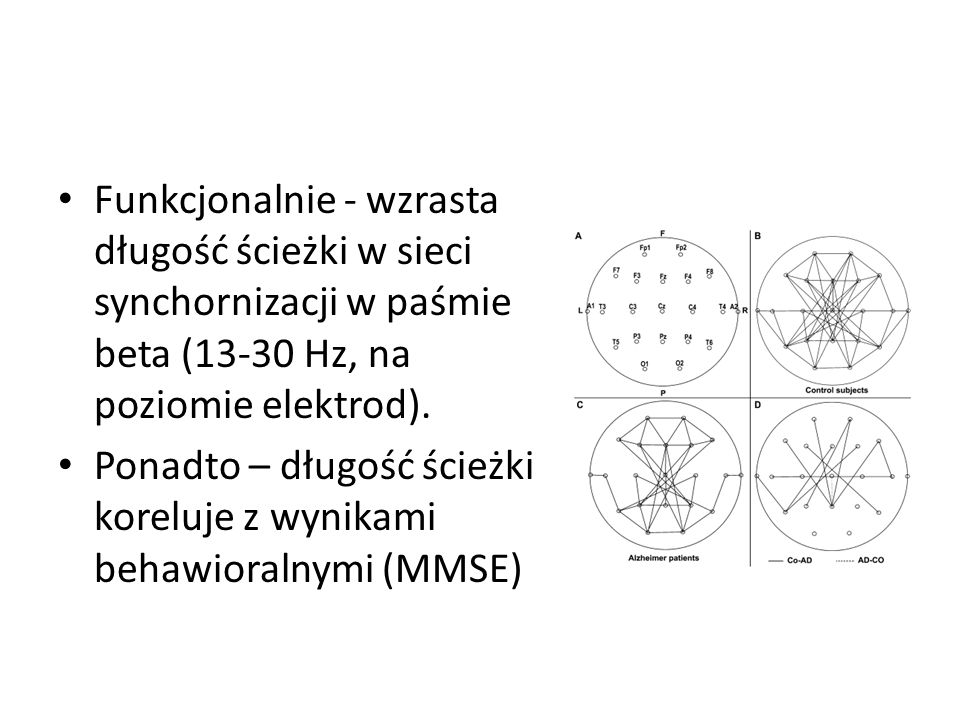 Funkcjonalnie - wzrasta długość ścieżki w sieci synchornizacji w paśmie beta (13-30 Hz, na poziomie elektrod).