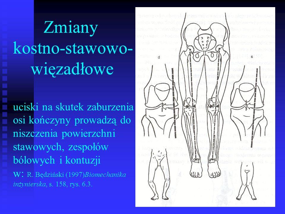 Zmiany kostno-stawowo- więzadłowe uciski na skutek zaburzenia osi kończyny prowadzą do niszczenia powierzchni stawowych, zespołów bólowych i kontuzji w: R.