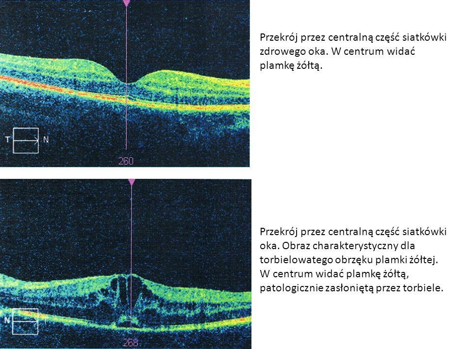 Przekrój przez centralną część siatkówki zdrowego oka