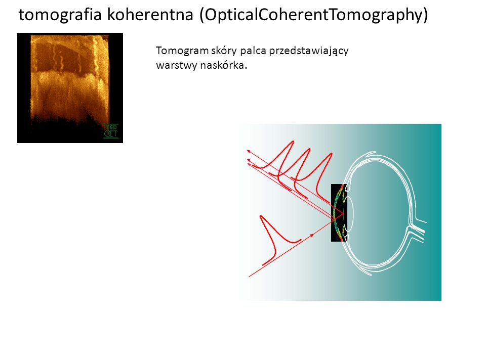 tomografia koherentna (OpticalCoherentTomography)