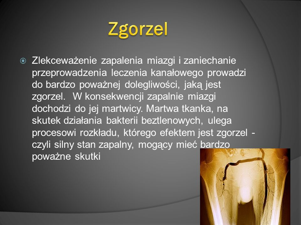 Zgorzel