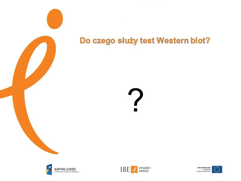 Do czego służy test Western blot