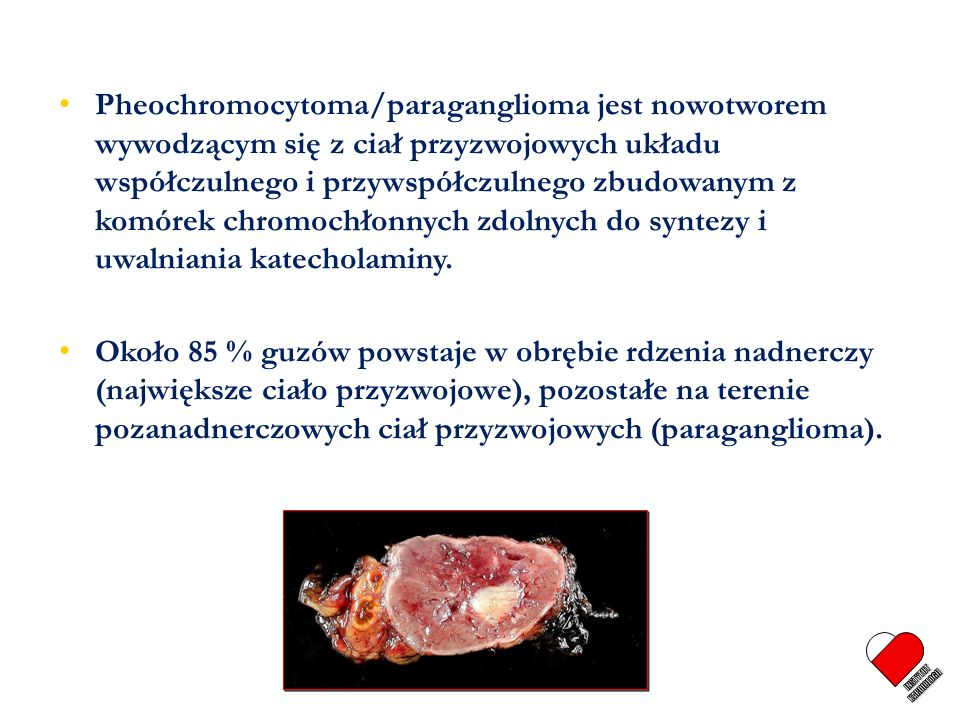 Pheochromocytoma/paraganglioma jest nowotworem wywodzącym się z ciał przyzwojowych układu współczulnego i przywspółczulnego zbudowanym z komórek chromochłonnych zdolnych do syntezy i uwalniania katecholaminy.