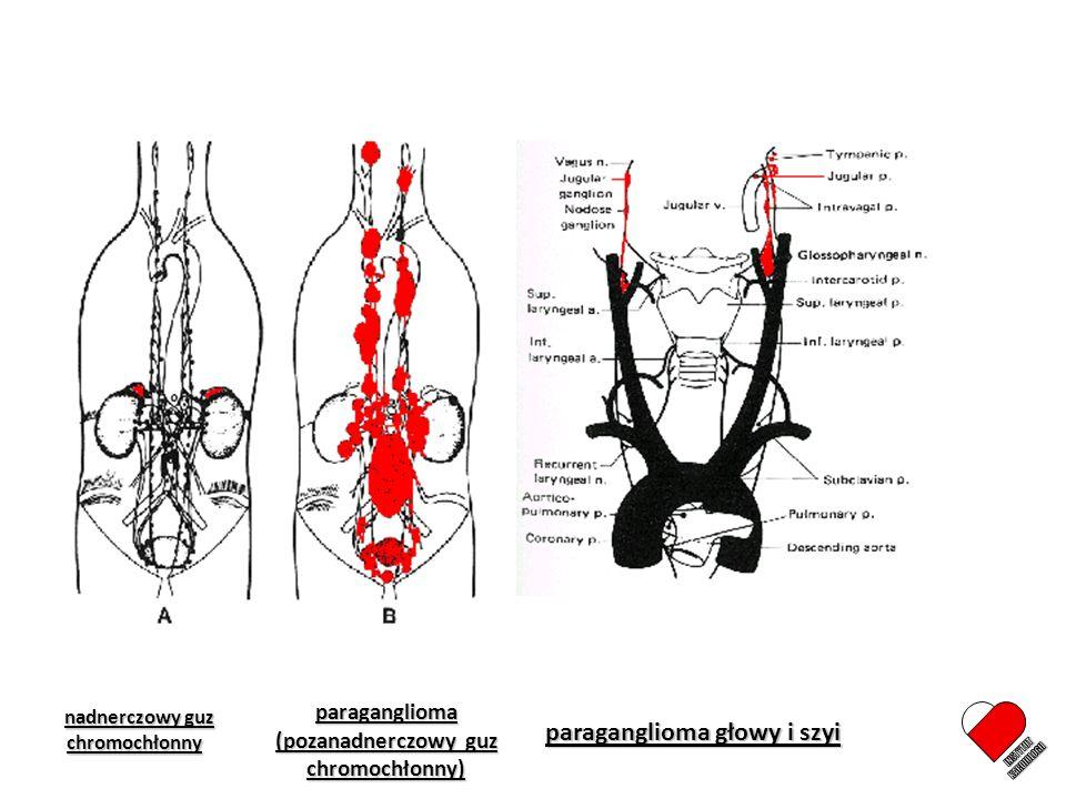 INSTYTUT KARDIOLOGII paraganglioma głowy i szyi