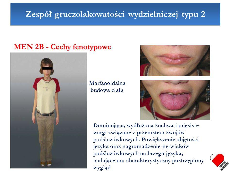 Zespół gruczolakowatości wydzielniczej typu 2