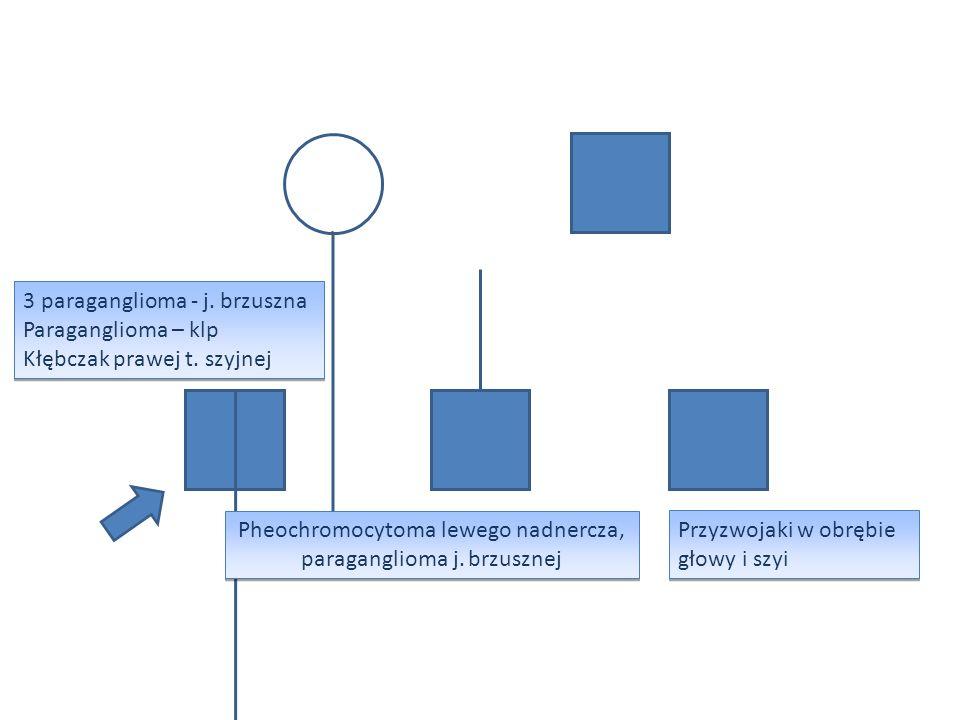 Pheochromocytoma lewego nadnercza, paraganglioma j. brzusznej