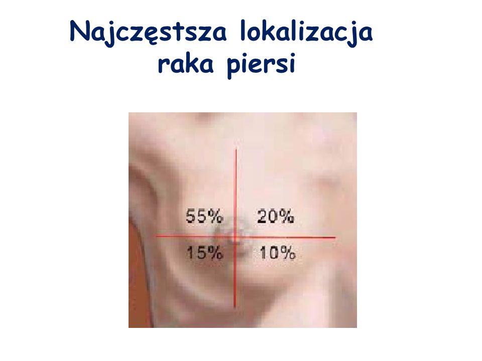 Najczęstsza lokalizacja raka piersi