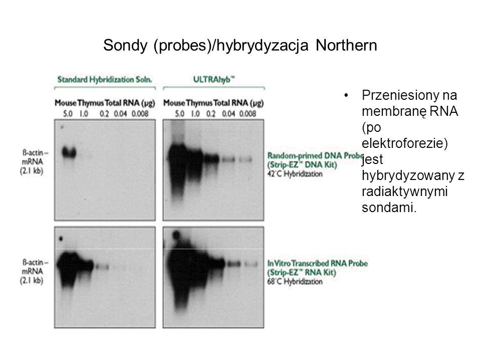 Sondy (probes)/hybrydyzacja Northern