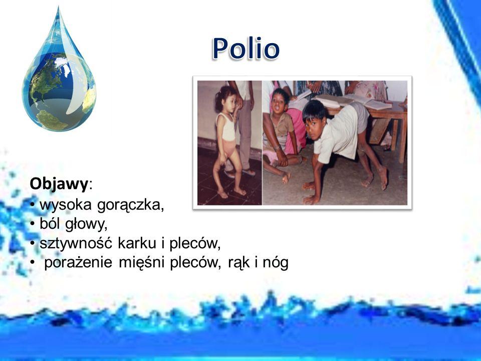 Polio Objawy: wysoka gorączka, ból głowy, sztywność karku i pleców,