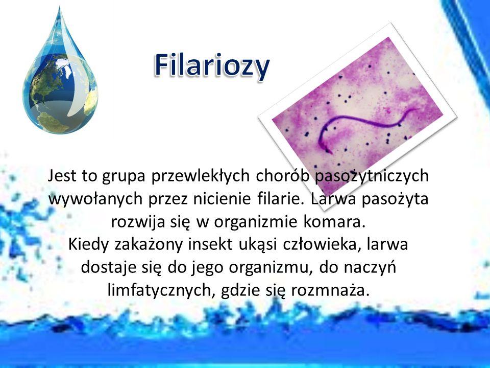 Filariozy