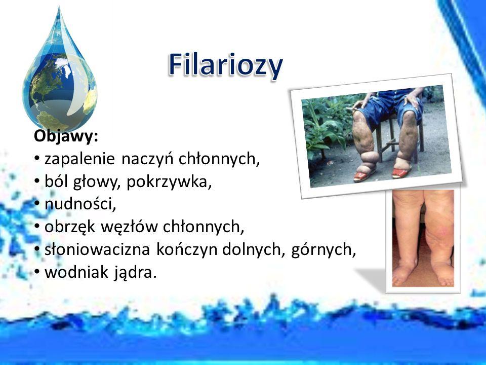 Filariozy Objawy: zapalenie naczyń chłonnych, ból głowy, pokrzywka,
