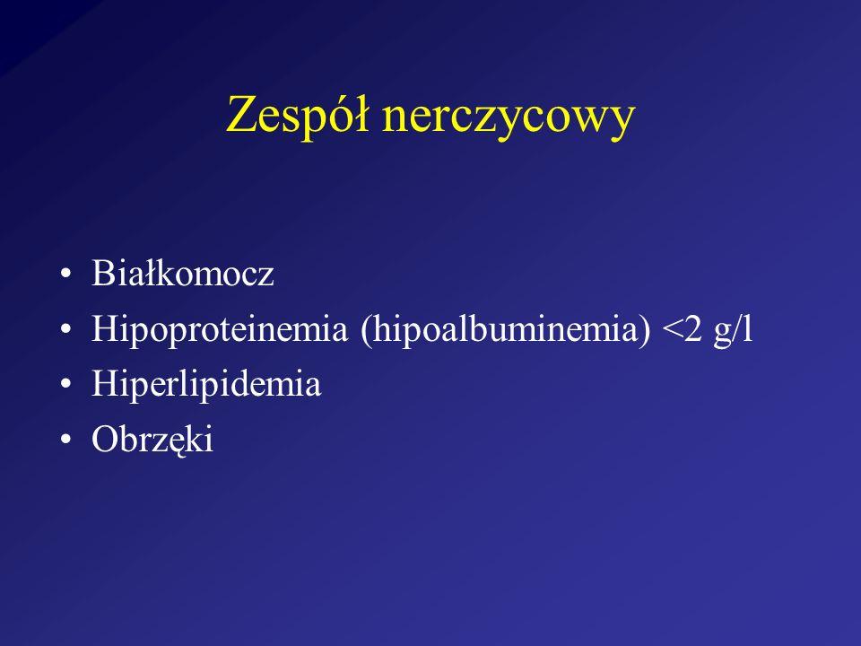 Zespół nerczycowy Białkomocz