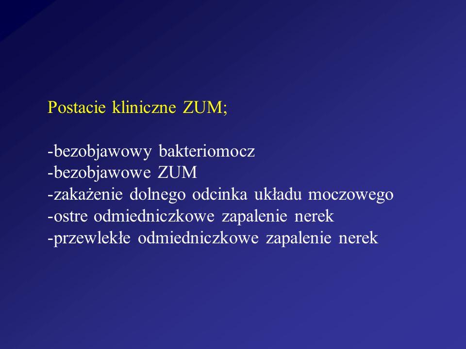 Postacie kliniczne ZUM;