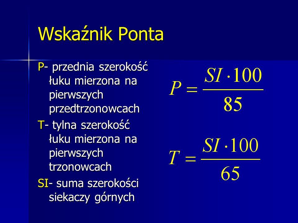 Wskaźnik Ponta P- przednia szerokość łuku mierzona na pierwszych przedtrzonowcach. T- tylna szerokość łuku mierzona na pierwszych trzonowcach.