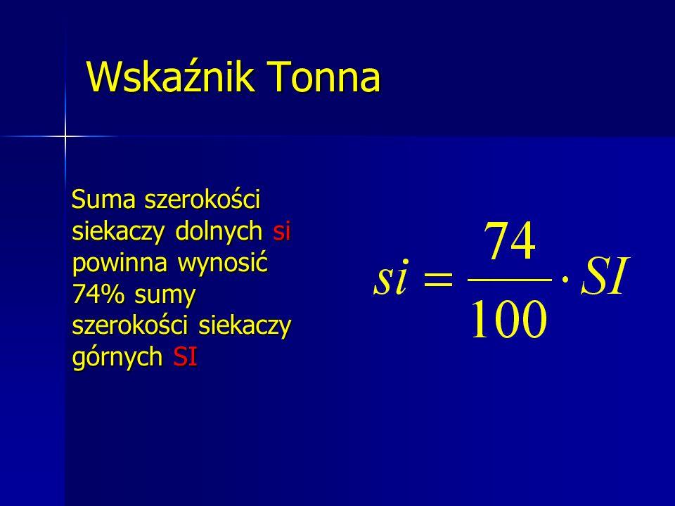 Wskaźnik Tonna Suma szerokości siekaczy dolnych si powinna wynosić 74% sumy szerokości siekaczy górnych SI.