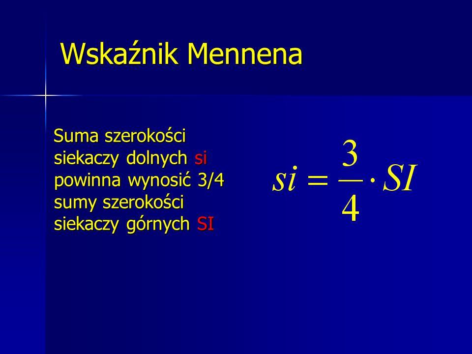 Wskaźnik Mennena Suma szerokości siekaczy dolnych si powinna wynosić 3/4 sumy szerokości siekaczy górnych SI.