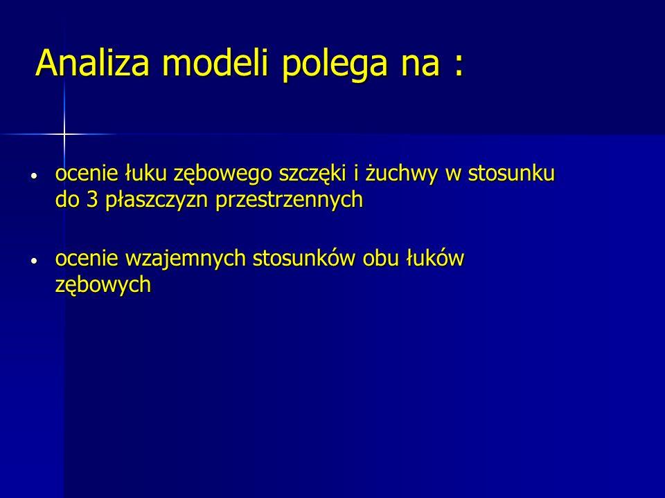 Analiza modeli polega na :