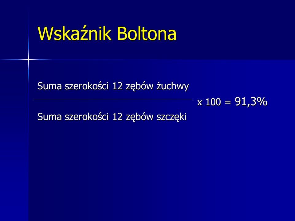 Wskaźnik Boltona Suma szerokości 12 zębów żuchwy x 100 = 91,3%