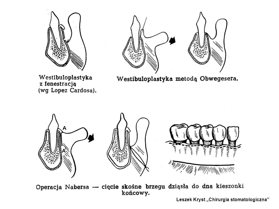"Leszek Kryst ""Chirurgia stomatologiczna"
