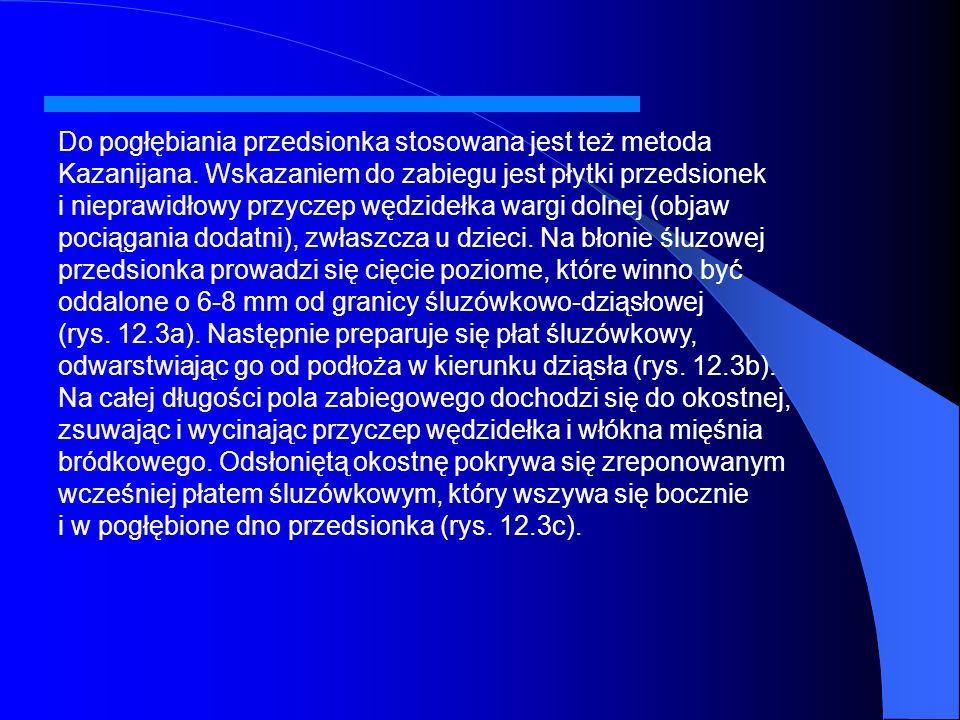 Do pogłębiania przedsionka stosowana jest też metoda Kazanijana