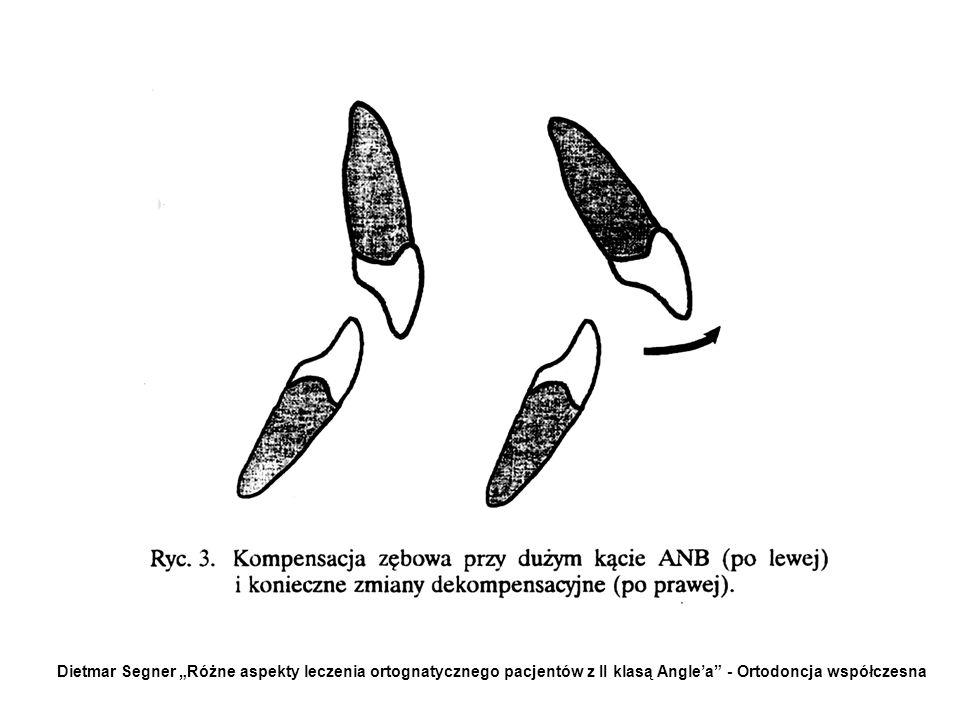 """Dietmar Segner """"Różne aspekty leczenia ortognatycznego pacjentów z II klasą Angle'a - Ortodoncja współczesna"""