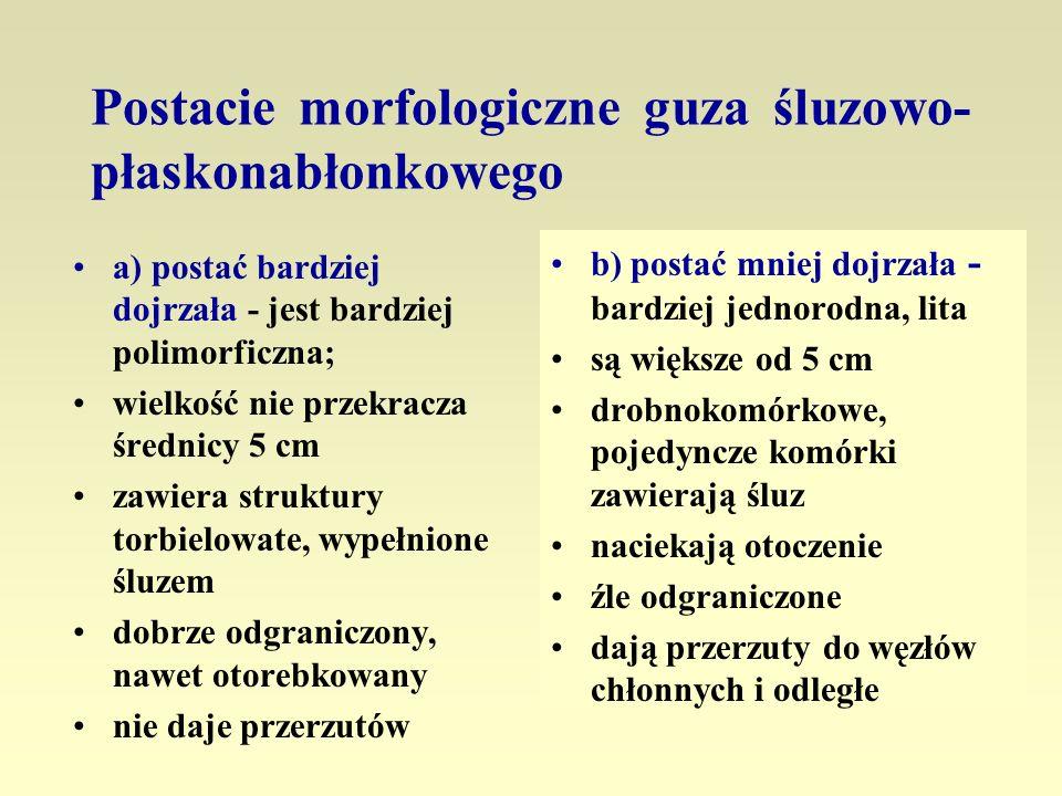 Postacie morfologiczne guza śluzowo- płaskonabłonkowego