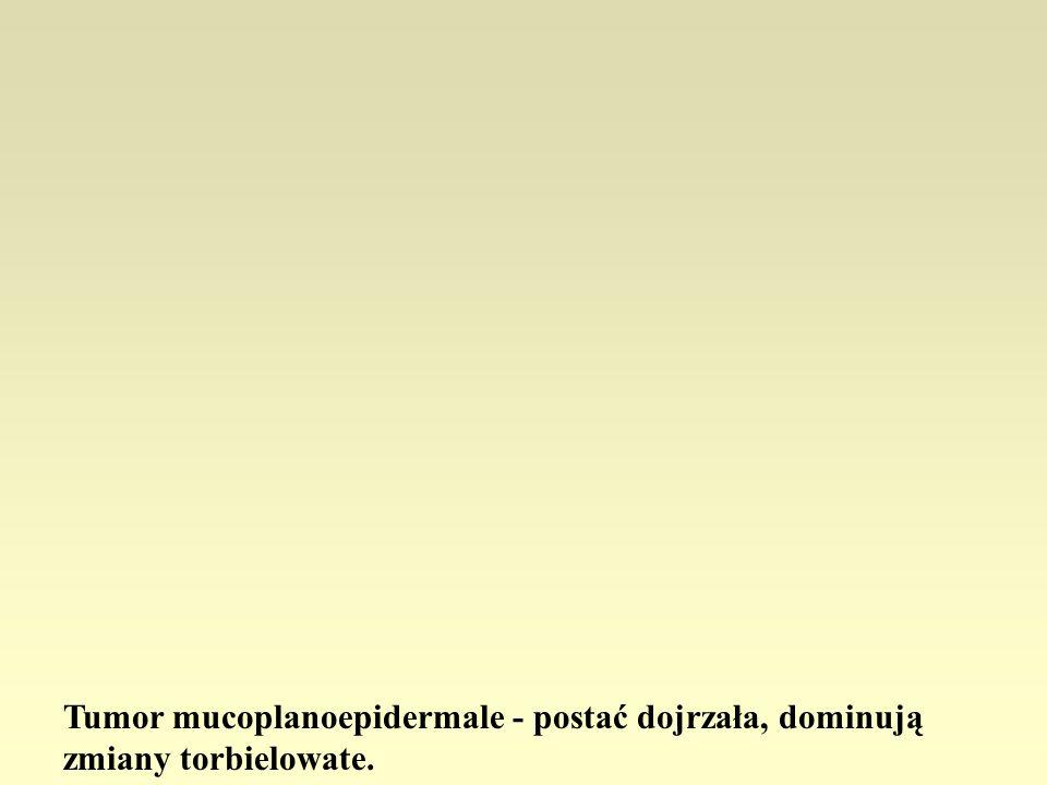 Tumor mucoplanoepidermale - postać dojrzała, dominują zmiany torbielowate.