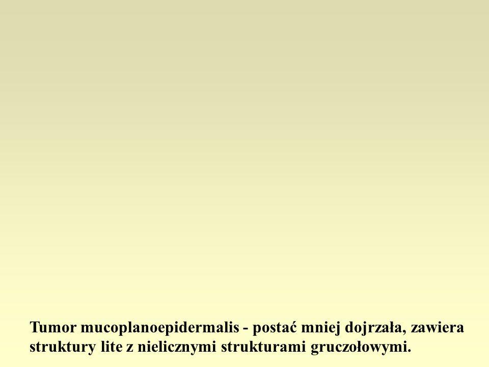 Tumor mucoplanoepidermalis - postać mniej dojrzała, zawiera struktury lite z nielicznymi strukturami gruczołowymi.