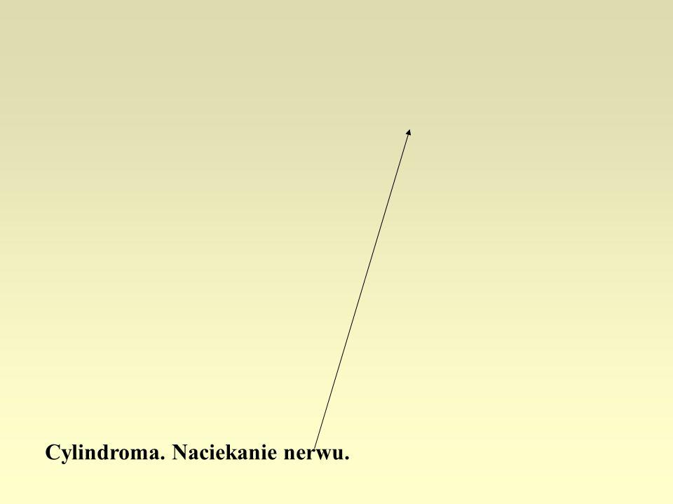 Cylindroma. Naciekanie nerwu.