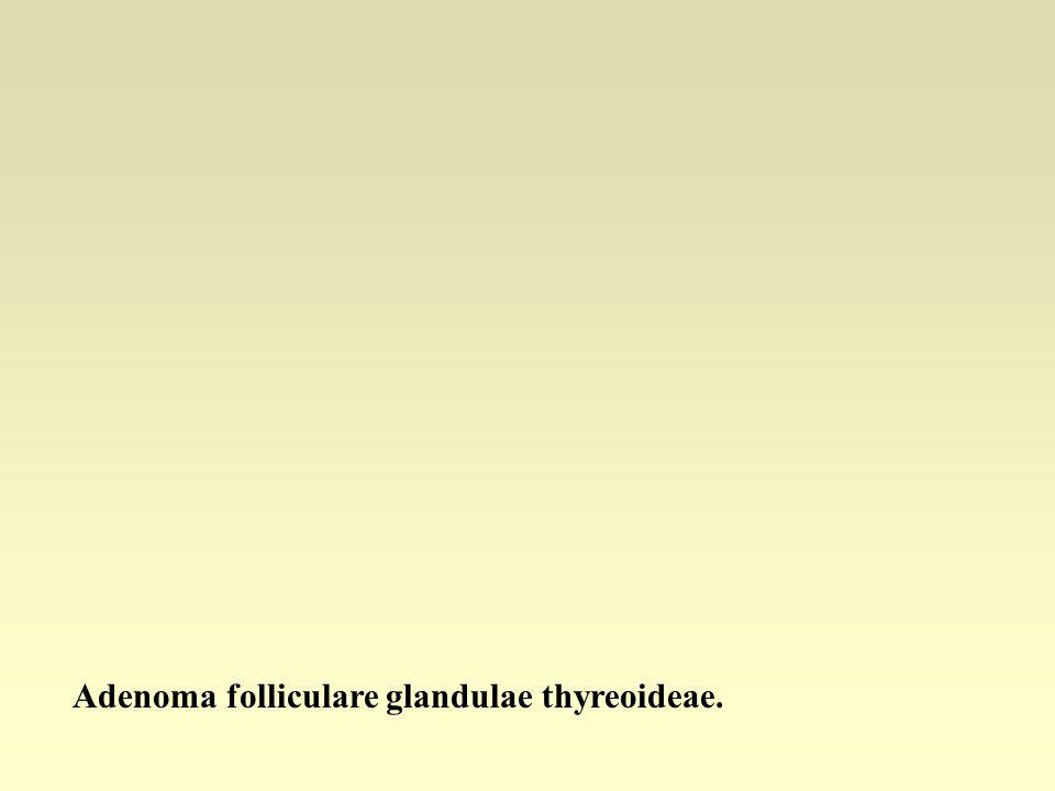 Adenoma folliculare glandulae thyreoideae.