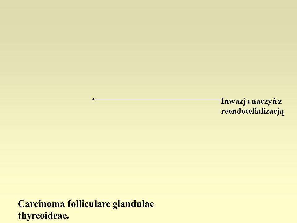 Carcinoma folliculare glandulae thyreoideae.