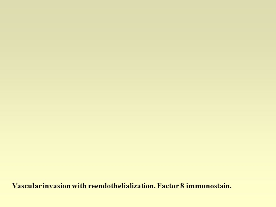 Vascular invasion with reendothelialization. Factor 8 immunostain.