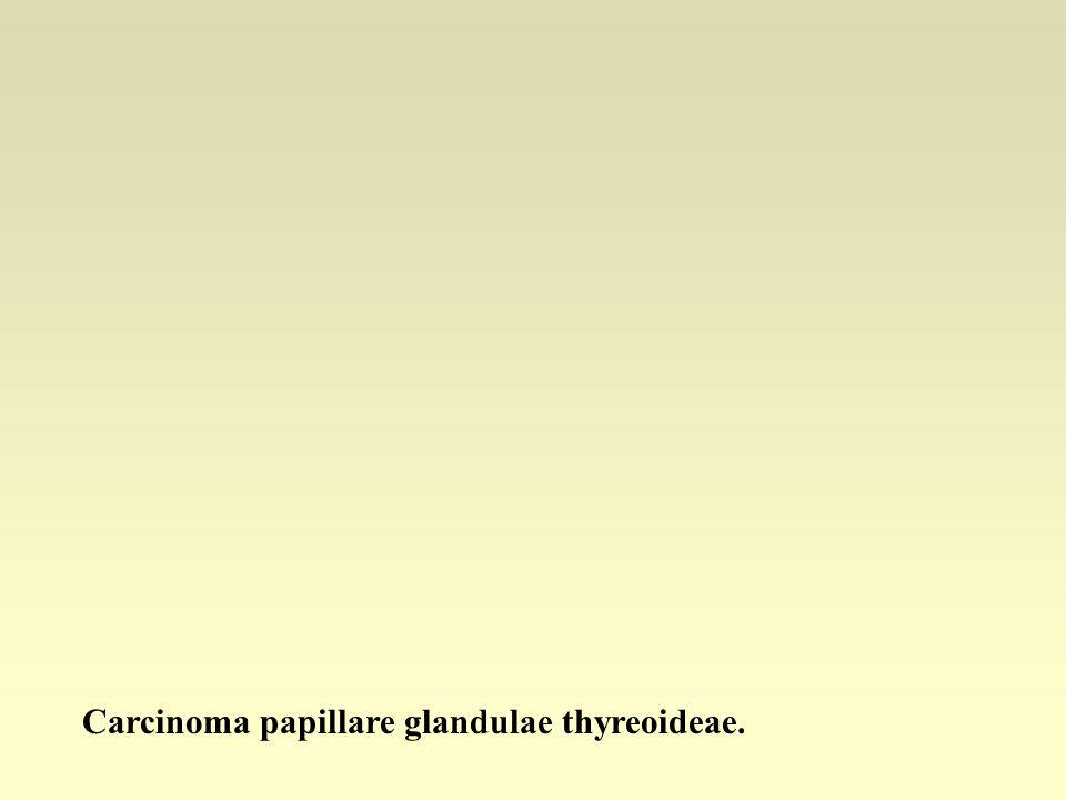 Carcinoma papillare glandulae thyreoideae.