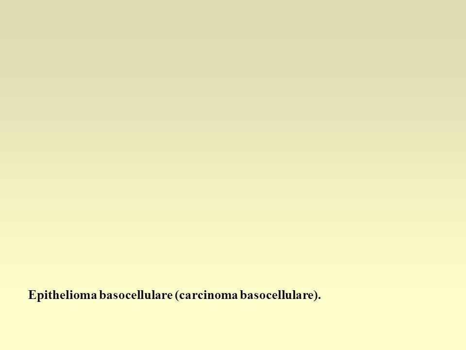 Epithelioma basocellulare (carcinoma basocellulare).