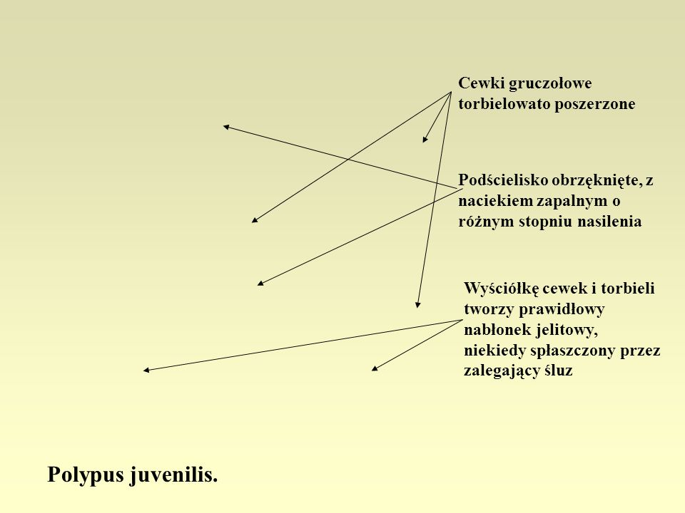 Polypus juvenilis. Cewki gruczołowe torbielowato poszerzone